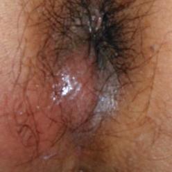 肛門周囲膿傷